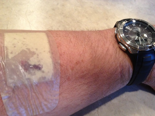 Todd's arm after skin cancer was removed