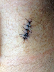 stitches on man's arm after having growth removed