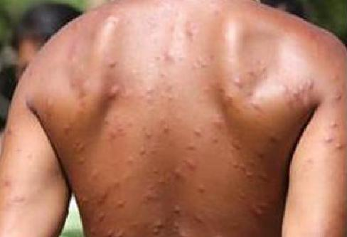 Guy with bug bites on Survivor: Philippines