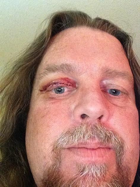 Brian Post Surgery