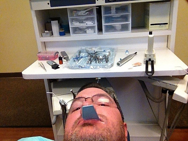 Making impression for tooth cap